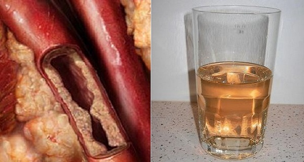 This-Drink-Will-Unclog-Your-Arteries-And-Protect-Against-Heart-Diseases