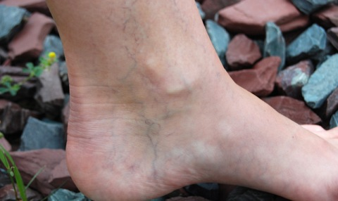 How-to-remove-spider-veins-of-the-legs
